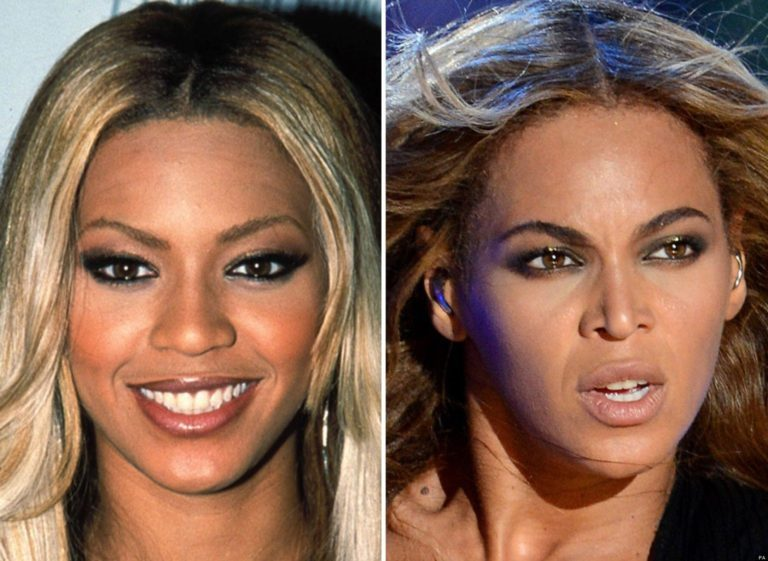 Beyonce Plastic Surgery, Nose Job